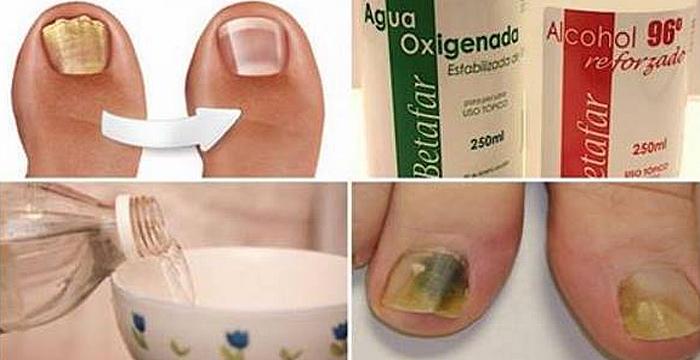 Elabora tu propio rompe hongos un remedio capaz de - Eliminar hongos ducha ...